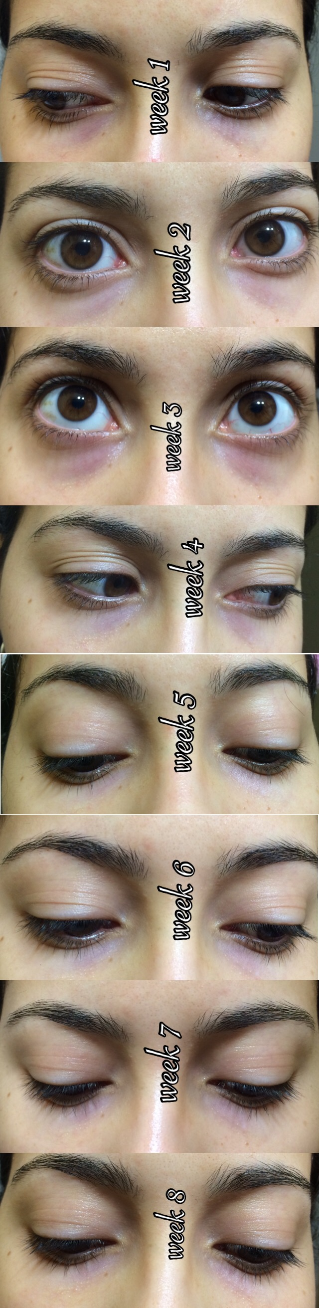 DeVita, Natural Skin Care, Acne Solution Pads, 2 oz (pack of 6)